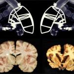 Estudos com jogadores de futebol americano confirmam danos cerebrais