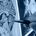 Pesquisa indica tratamento que reduz a mortalidade em casos de AVC