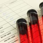 Organização norte-americana reavalia posição em relação ao teste PSA