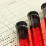 Exame de sangue para diagnosticar Alzheimer mostra 100 de eficiência em testes iniciais