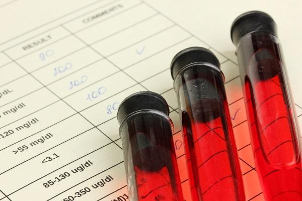 Exame de sangue para diagnosticar Alzheimer mostra 100% de eficiência em testes iniciais