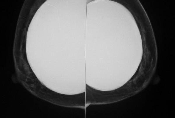 anvisa-proibe-uso-e-comercializacao-de-implante-mamario-importado