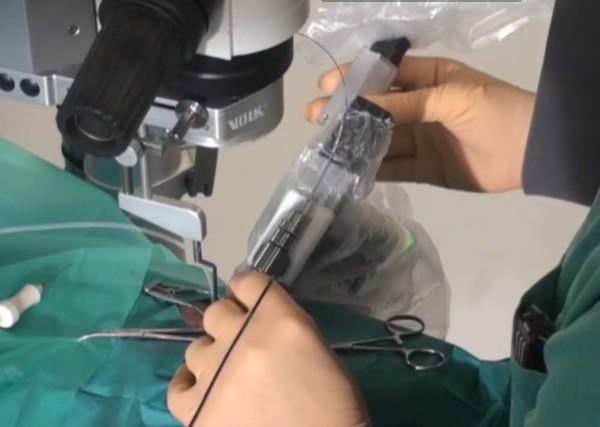robo-realiza-a-primeira-cirurgia-intraocular-para-restaurar-visao